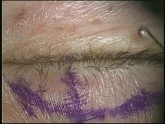 右眼瞼下垂に対する眼瞼拳筋前転法(CO2レーザー使用)