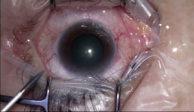 GSLトリプル (Ocular Mori Upright Surgical Gonio Lens) No.2
