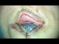 Baggy eyelidに対する、経結膜 眼窩脂肪切除(眼窩隔膜アプローチ) [編集済・解説付]