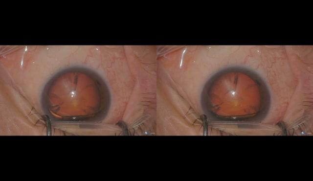 3D映像による白内障手術