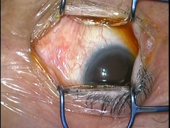 増殖糖尿病網膜症に対する27G硝子体手術