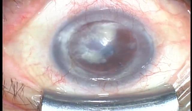 全層角膜移植