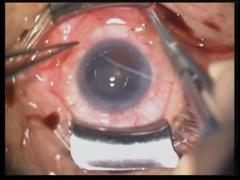 ICE症候群による水疱性角膜症に対する全層角膜移植