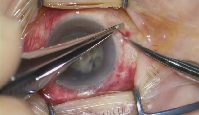 【27G vitrectomy】核落下に対する核処理およびIOL縫着
