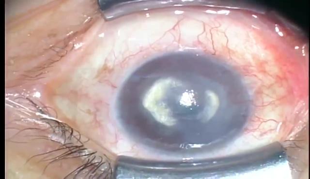 ヘルペス角膜炎による角膜混濁に対する深層表層角膜移植