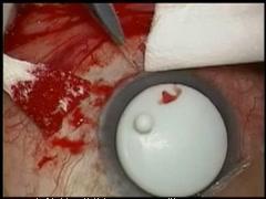 TLO-手術部位の選定(編集ビデオ)