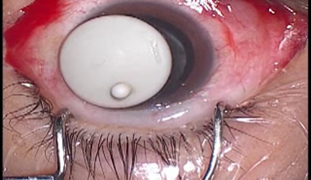 増殖硝子体網膜症に対するPPV+PEA+IOL