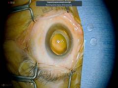 DMEに対する嚢胞切開術
