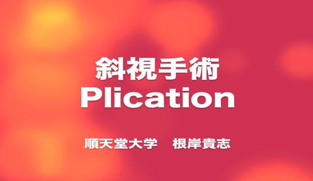斜視手術 Plication [編集済・解説付]