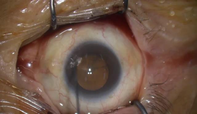 白内障手術(角膜内皮細胞:約800個/mm2)