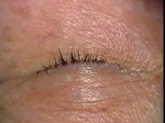 眼瞼内反症:Jones変法