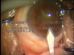 小瞳孔へのトーリックIOLの挿入