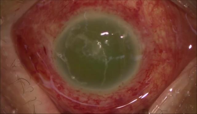 重症眼内炎に対する硝子体手術