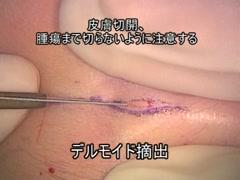 眉毛部デルモイド摘出[編集済・解説付]
