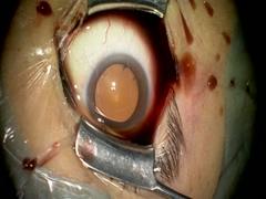 裂孔原性網膜剥離に対する25G硝子体手術