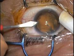 黄斑上膜に対する27G硝子体手術