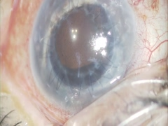角膜移植後眼に対する耳下側へのアーメドバルブ挿入