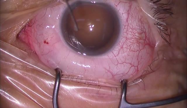 網膜剥離(水晶体温存硝子体手術)