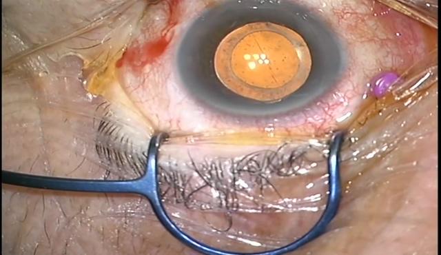 黄斑上膜(細かくちぎれて剥離しにくい症例)