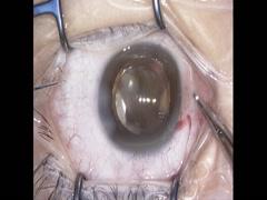 【27G vitrectomy】黄斑円孔を伴う裂孔原性網膜剥離に対する硝子体手術