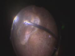 PDR (Dual linear vitrectomy) EVA使用