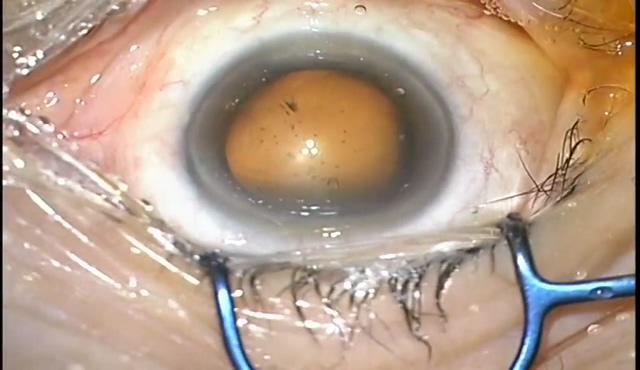 上方からの耳側切開白内障手術