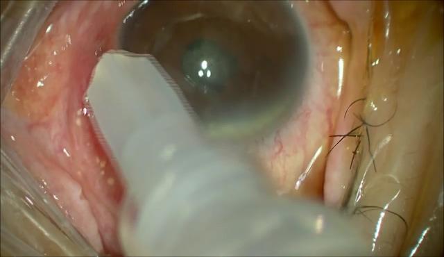 眼内炎に対する27G硝子体手術 (前編)