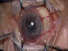 角膜全層移植後バルベルト(毛様溝)
