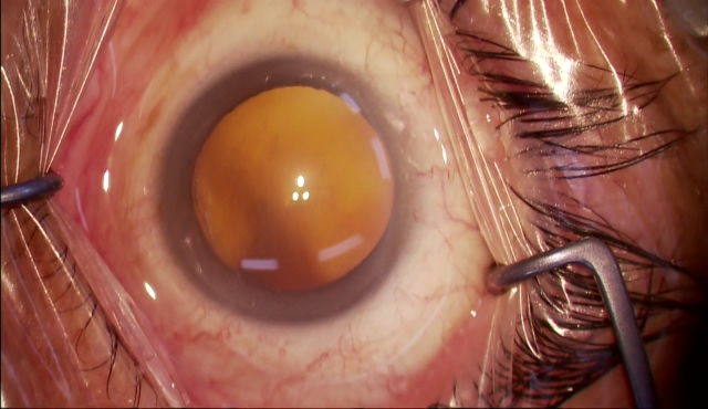 Suture trabeculotmy(眼内法)白内障同時手術
