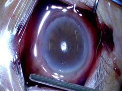 壊死性強膜炎に対する強膜片パッチ