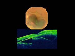加齢黄斑変性(網膜下血腫)PPV+血腫除去