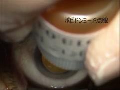 加齢黄斑変性症例に対する抗VEGF薬硝子体内注射(キャプション付)