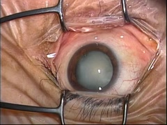 【27G vitrectomy】IOL眼内落下症例における眼内IOL縫着