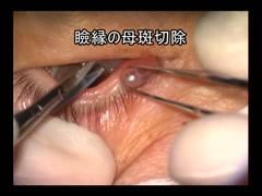瞼縁の母斑の取り方1[編集済・解説付]