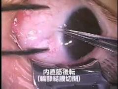 内斜視手術
