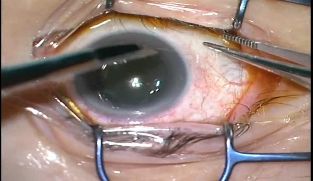 RVOによる陳旧性硝子体出血に対する27G硝子体手術