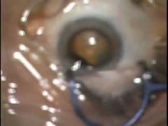 上方アプローチの耳側角膜切開白内障手術