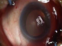 強角膜一面切開による白内障手術