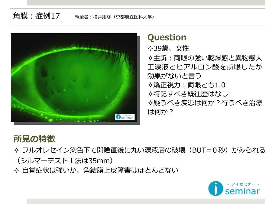 角膜:症例17