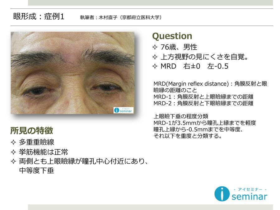 眼形成:症例1