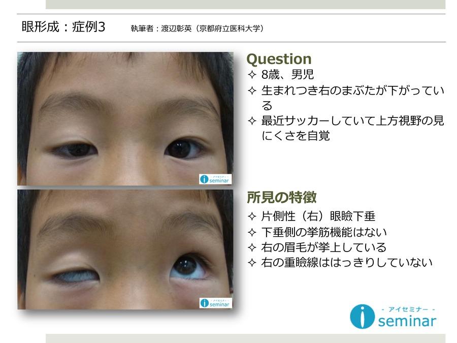 眼形成:症例3