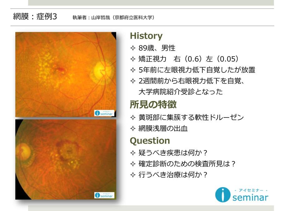 網膜:症例3