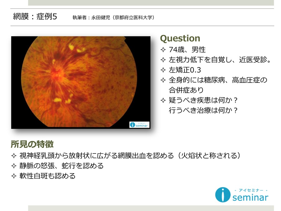 網膜:症例5