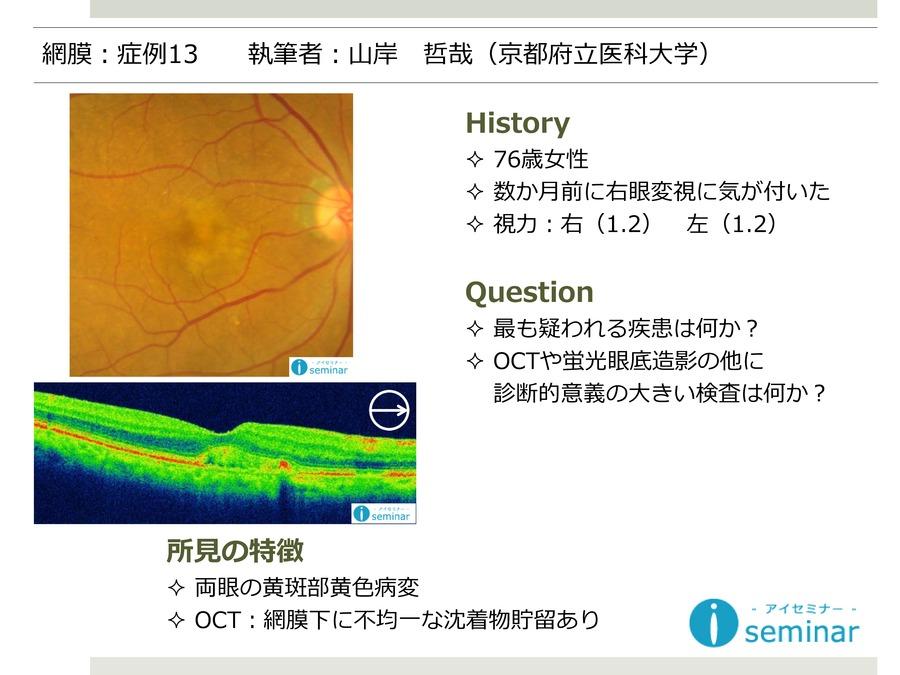網膜:症例13