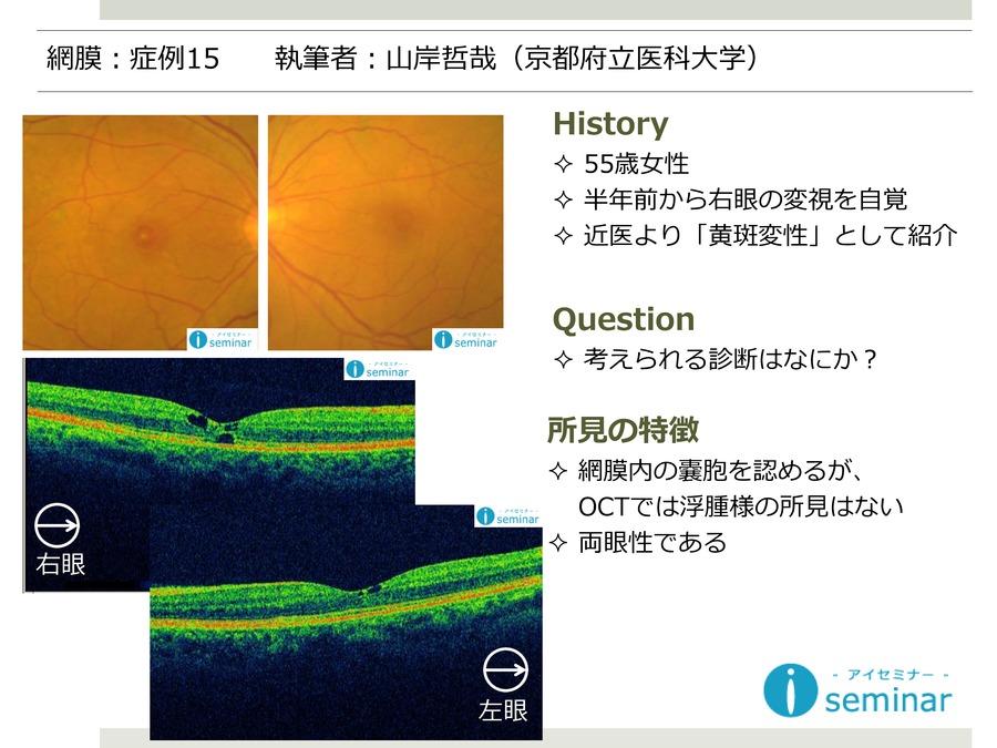 網膜:症例15
