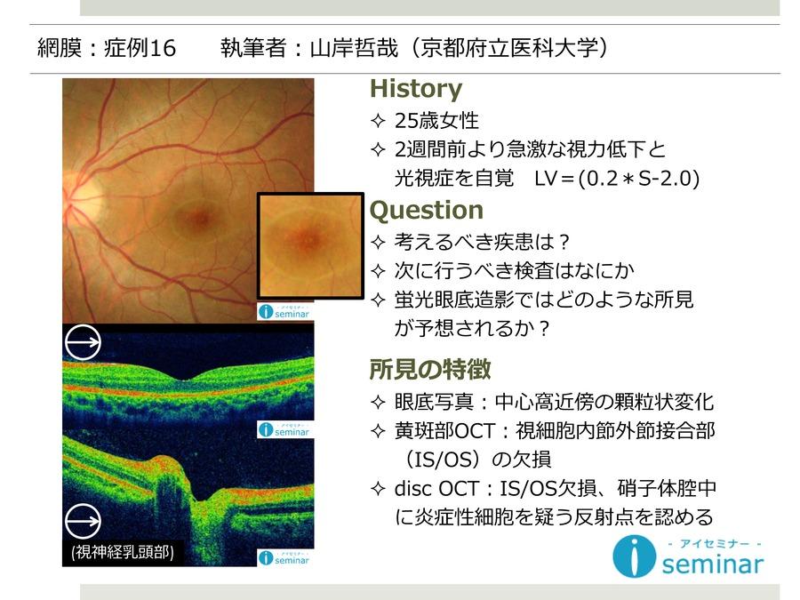網膜:症例16