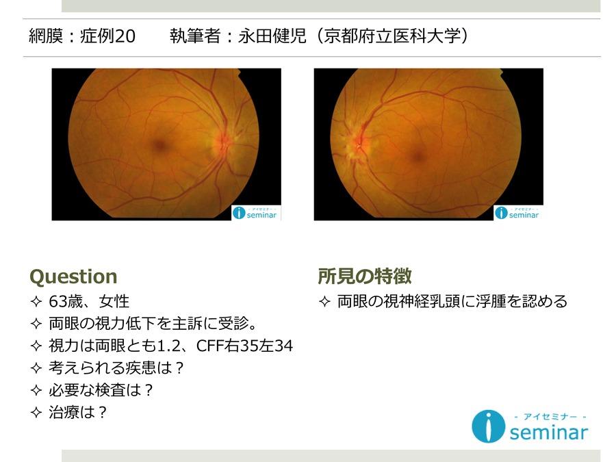 網膜:症例20