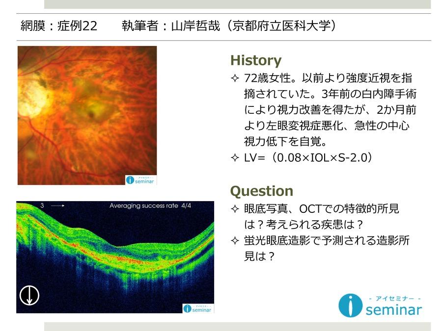 網膜:症例22