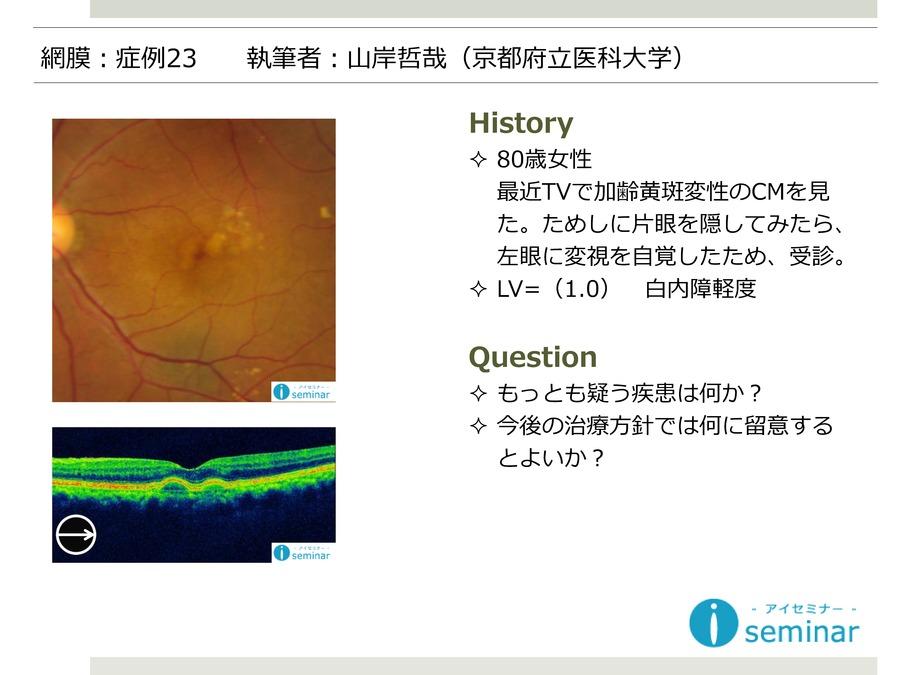 網膜:症例23