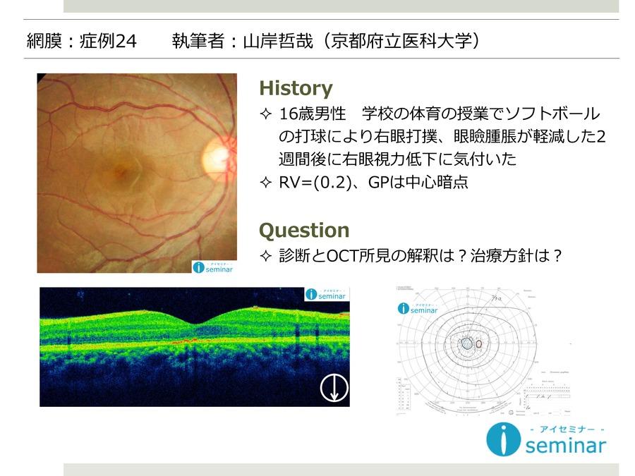 網膜:症例24